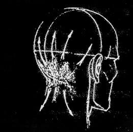 cefalea occipitale
