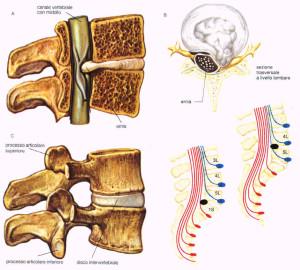 rappresentazione della compressione erniaria a livello vertebrale